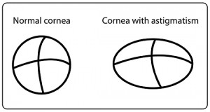 contacts for astigmatism